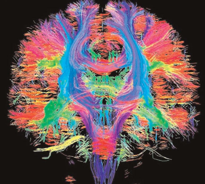 mozekbarvy