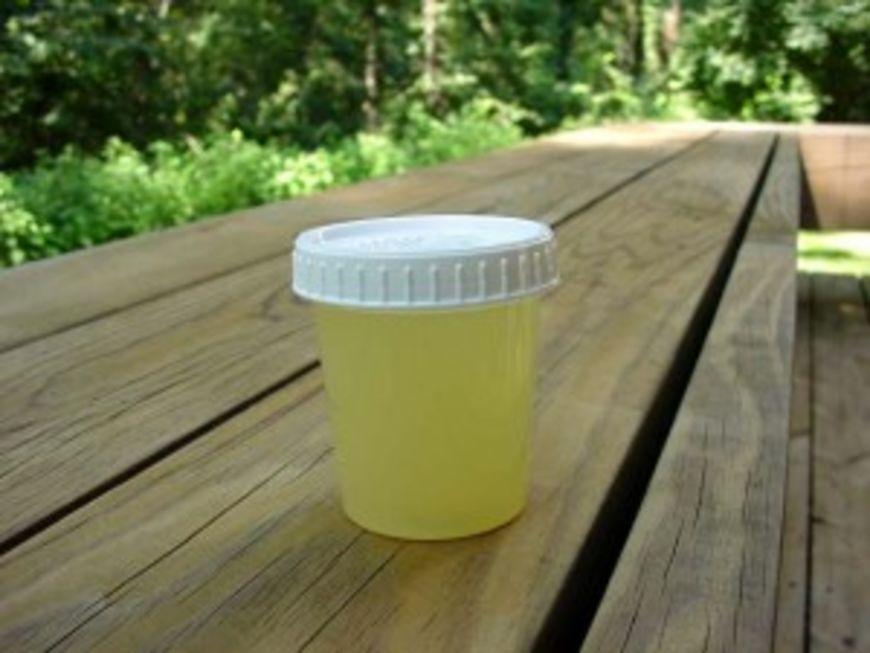 urina