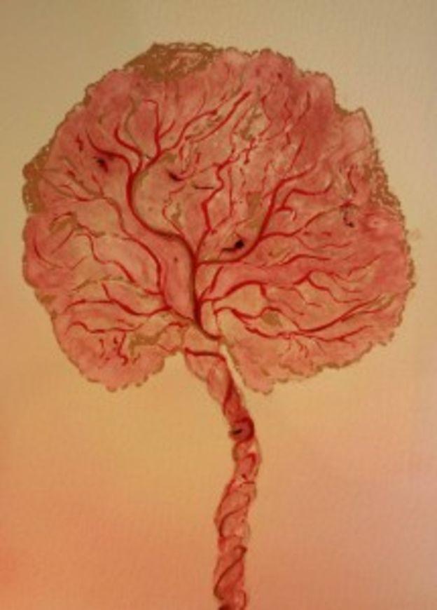 strom placenta